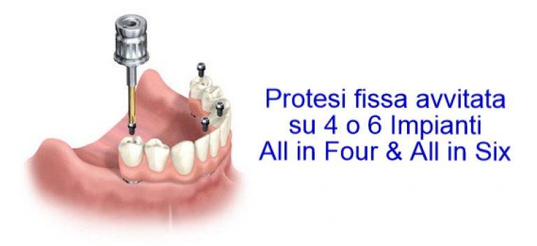 Protesi dentale Sicilia