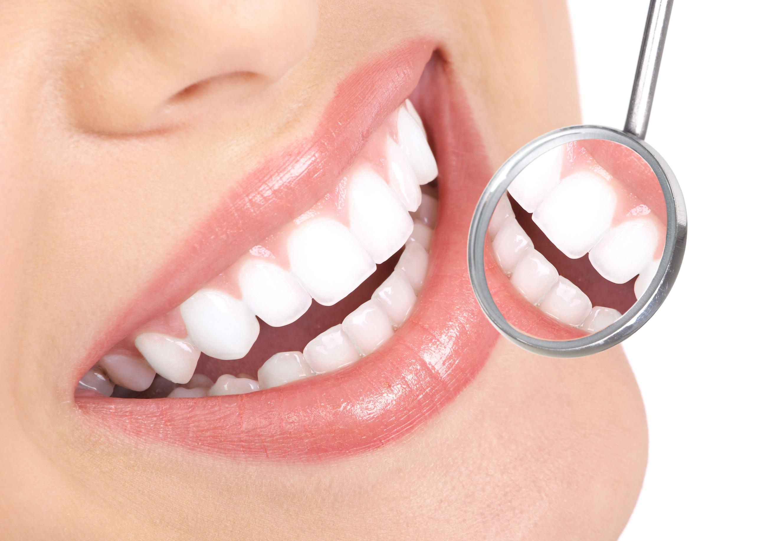 Pulizia dei denti Sicilia